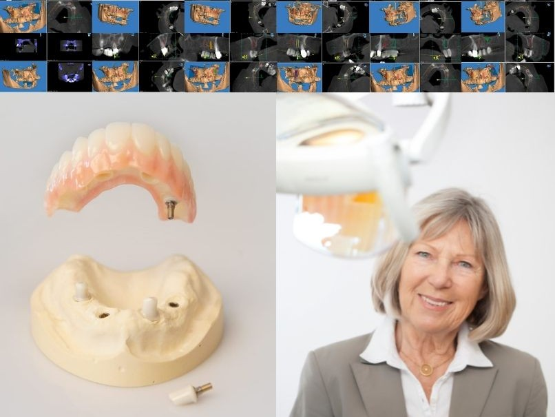 Unser Ziel ist der Zahnerhalt - Zahnarzt Uli Bauer Prien