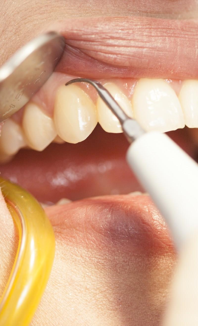 Zahnerhalt ist unser oberstes Ziel - Zahnarztpraxis Uli Bauer Prien